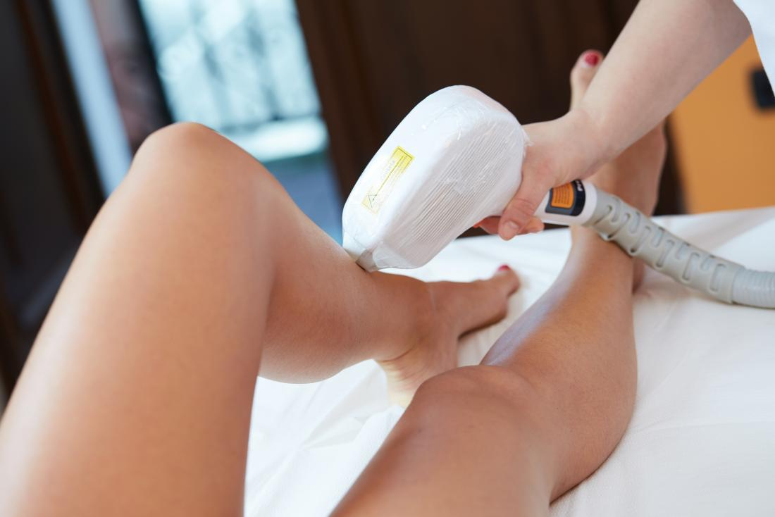 laser hair removal on legs.