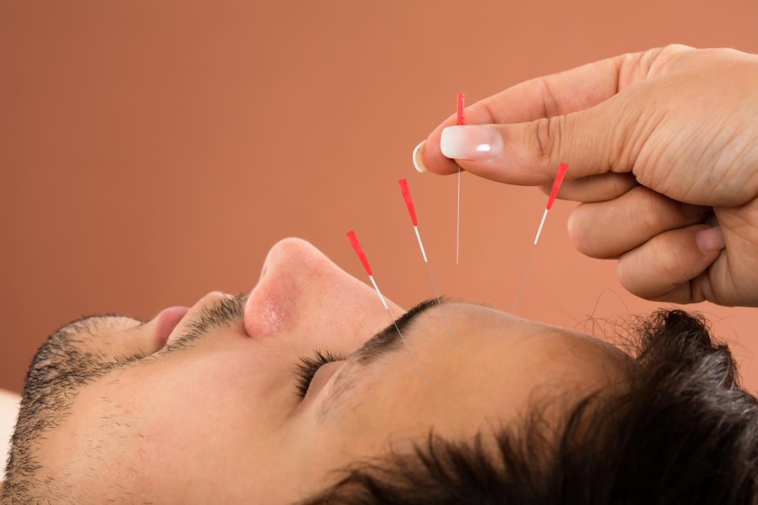 Man having acupuncture on his forehead
