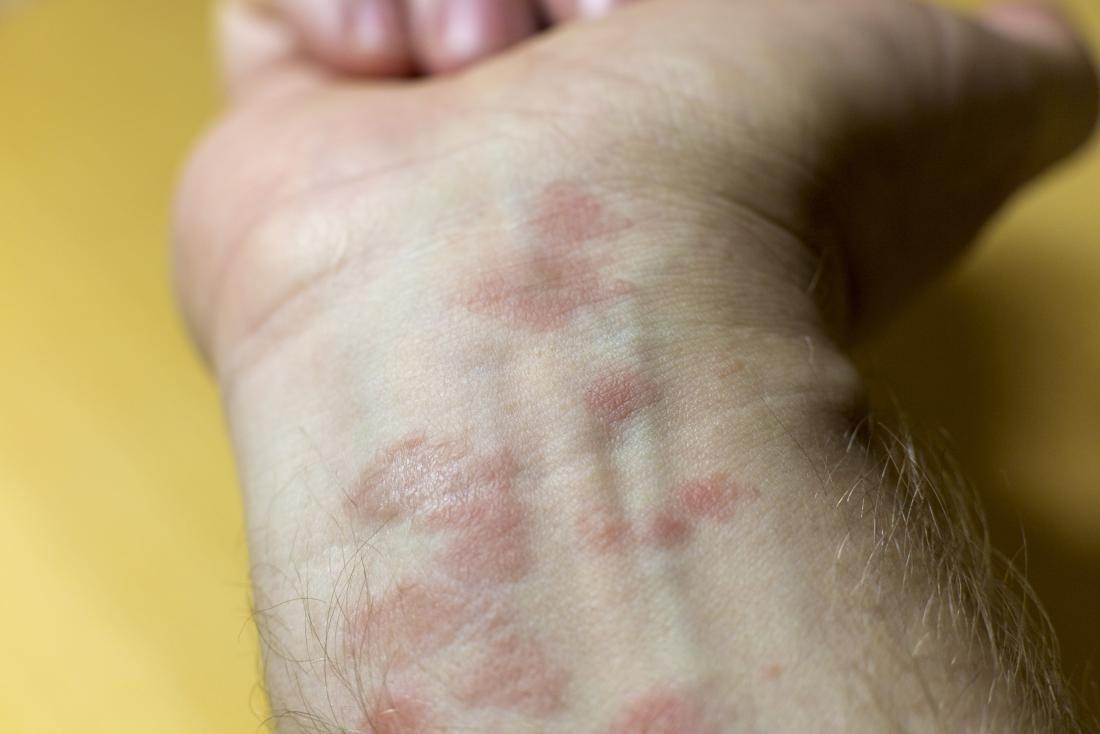 allergic eczema on mans wrist