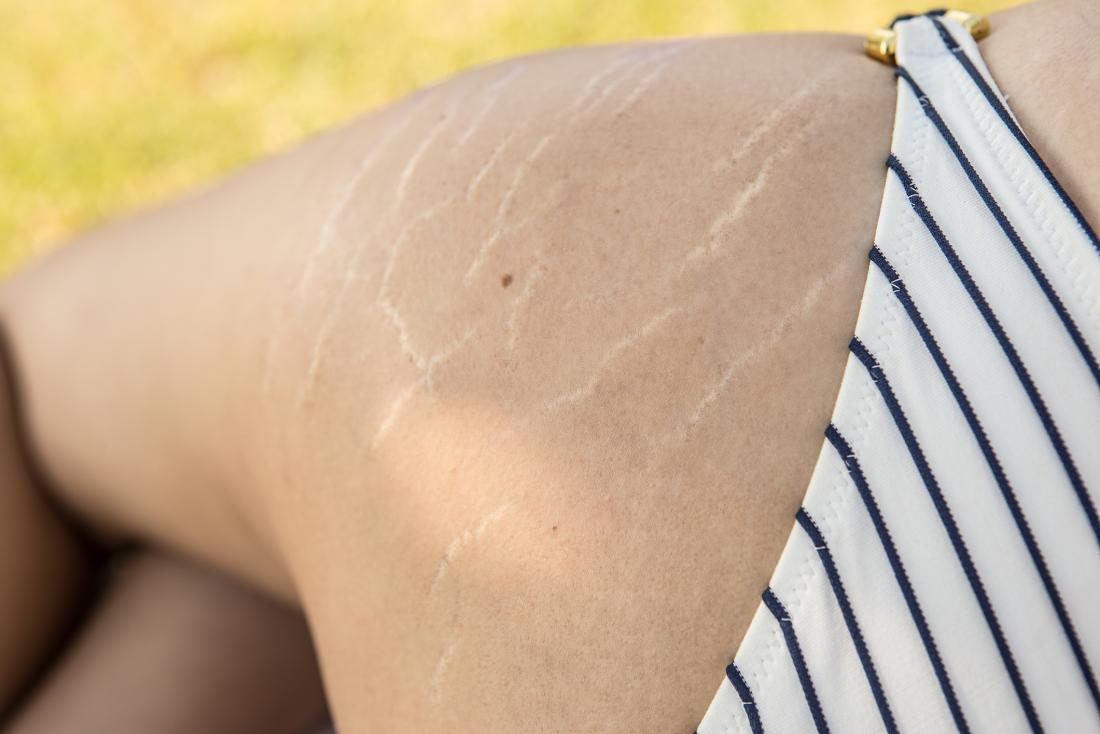 Stretch marks on a leg