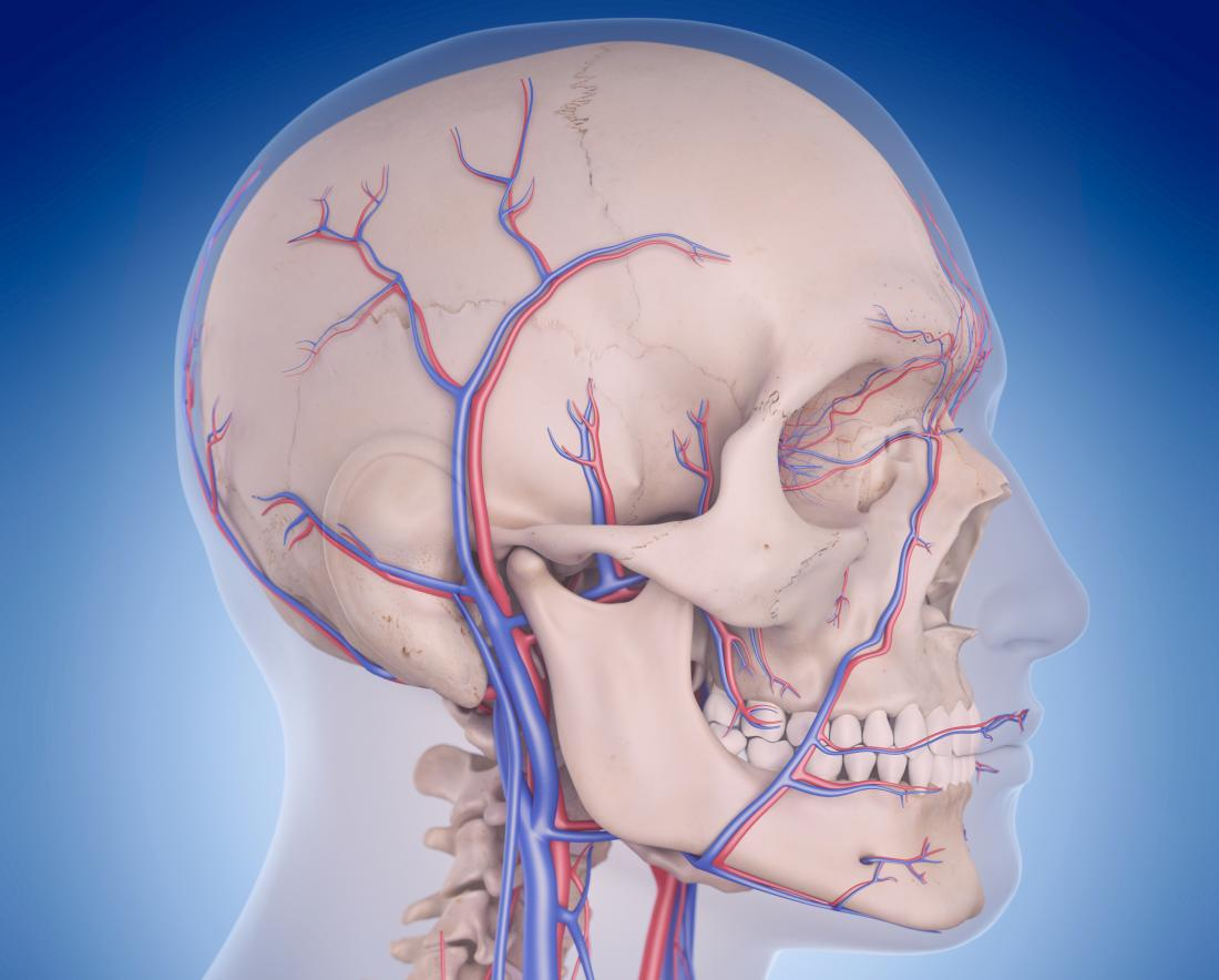 Image of blood flow to the brain and vertebrobasilar circulatory disorders