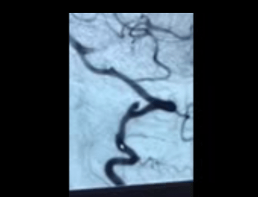 Tracy MRA of vertebral dissection and aneurysm