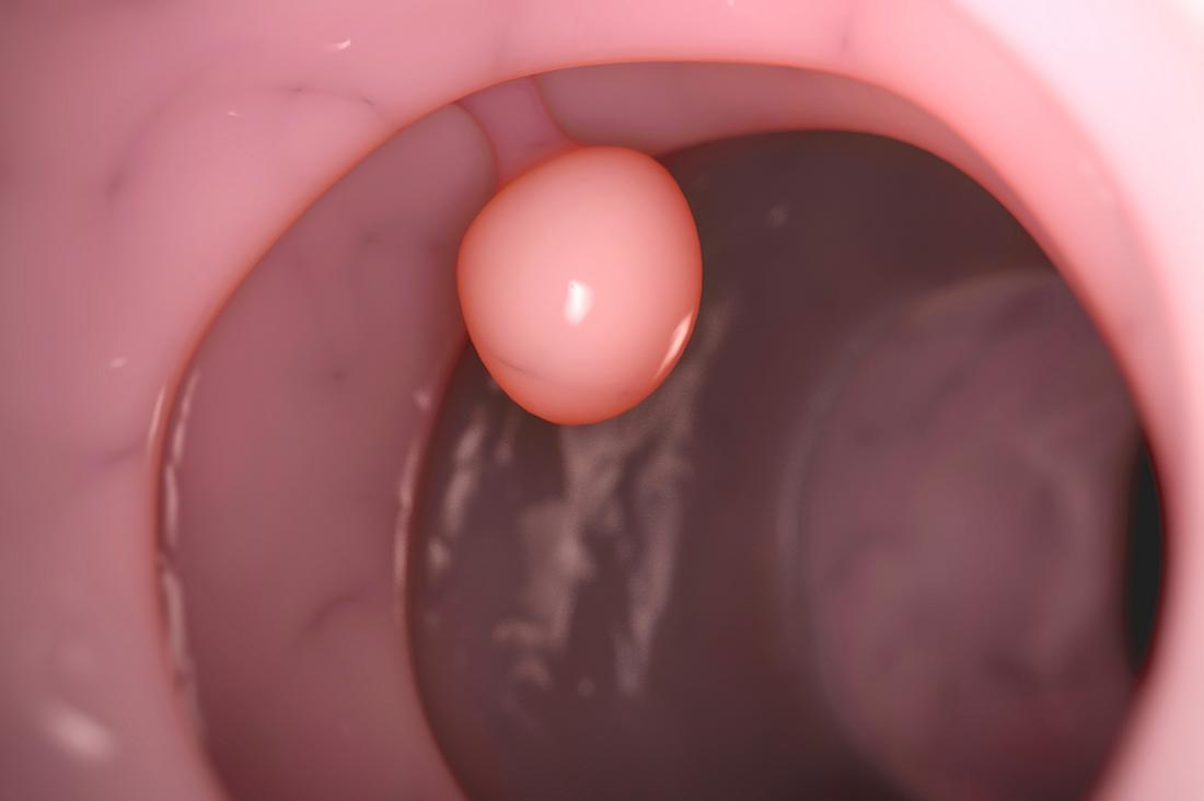 Polyp in cervix