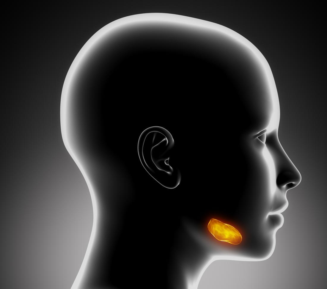 Salivary gland infection in sublingual gland