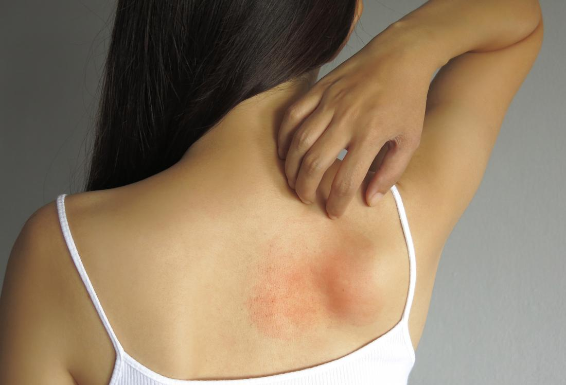A range of conditions may cause a hot rash.