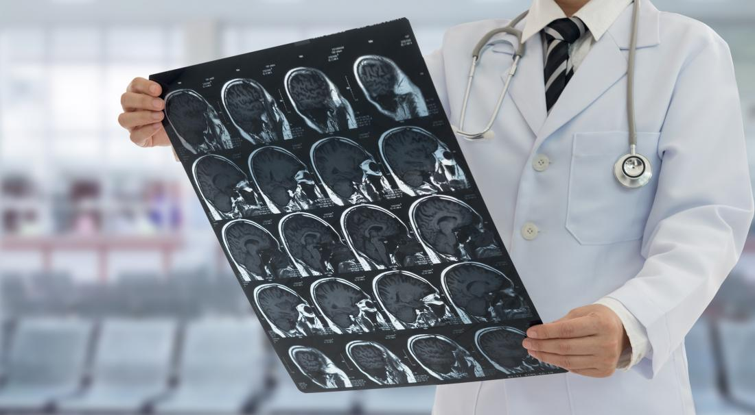 doctor looks at brain scan sheet