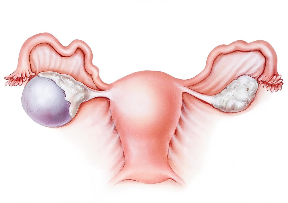 Diagram of a complex ovarian cyst