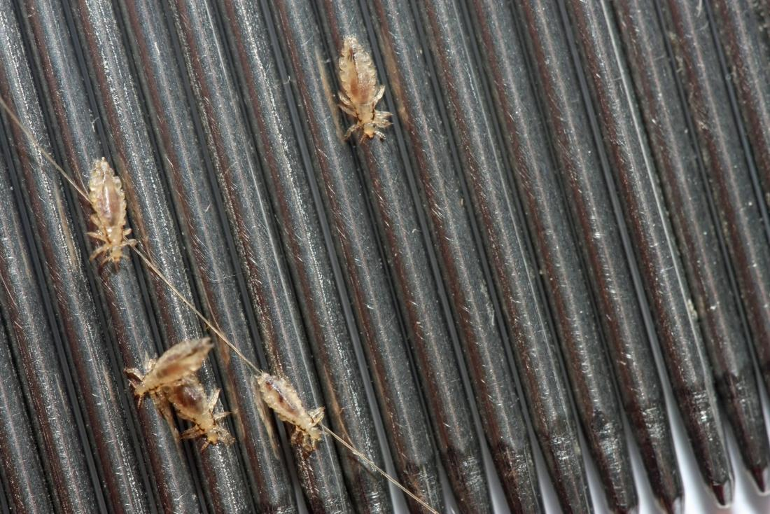 close up of head lice on a comb