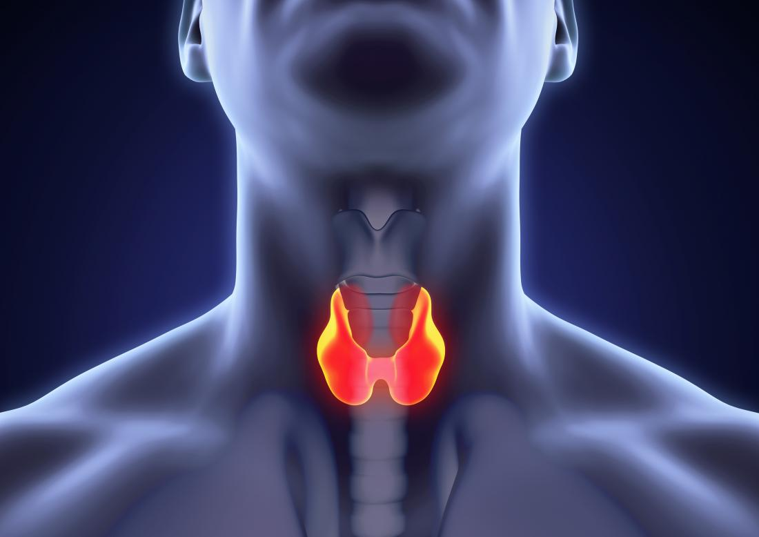 Early Signs Of Medullary Thyroid Cancer And Common Symptoms