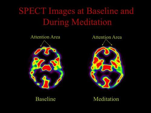 fmri scans of people meditating