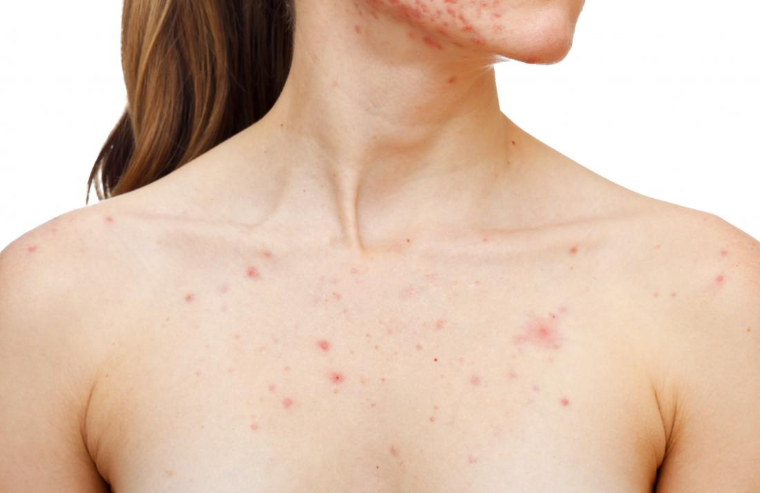 Woman with acne on jaw and chest.