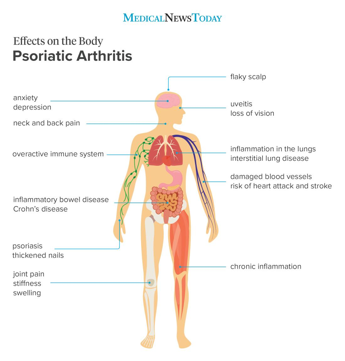 8 Effects Of Psoriatic Arthritis On The Body
