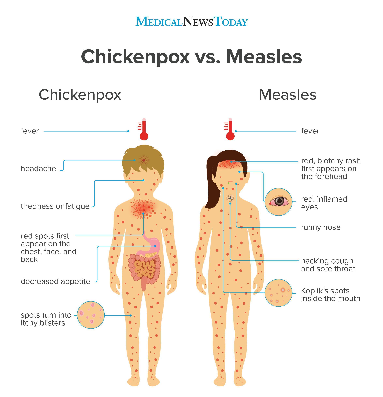 Chicken Pox Vaccine Rash