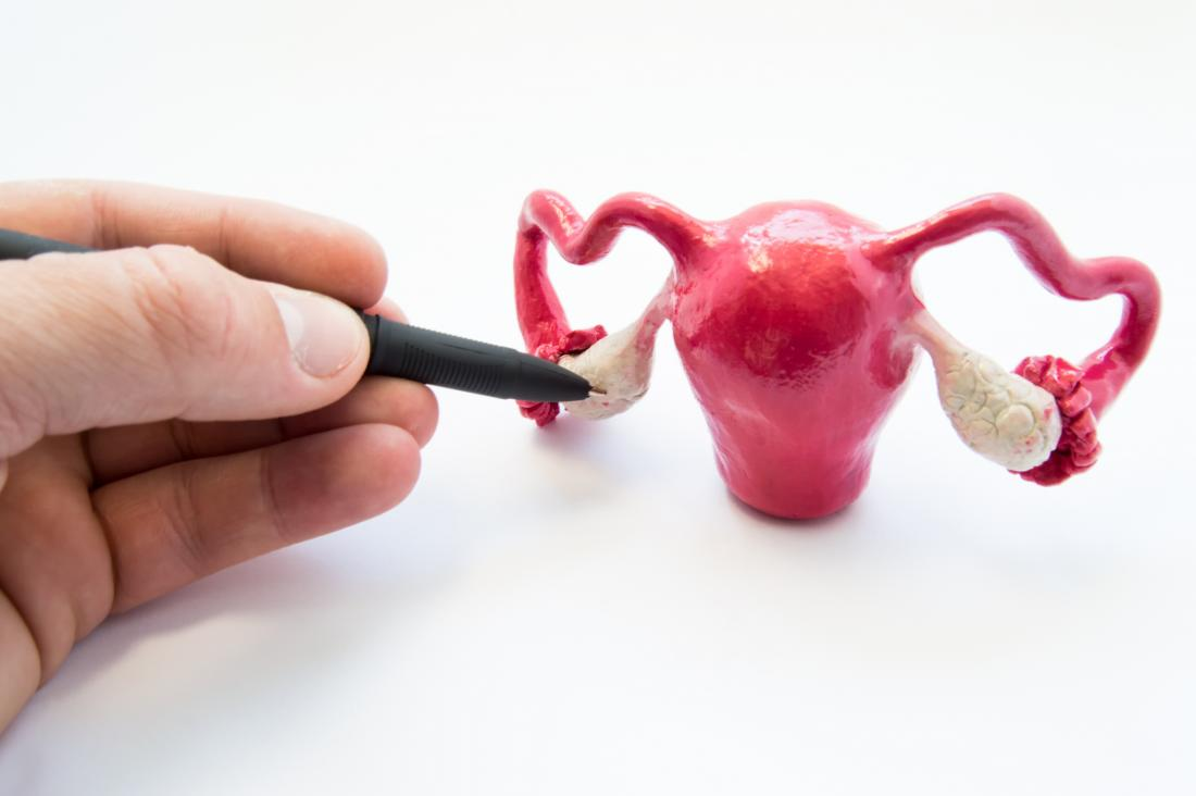 Ovarian torsion demonstrated by model of female reproductive system.