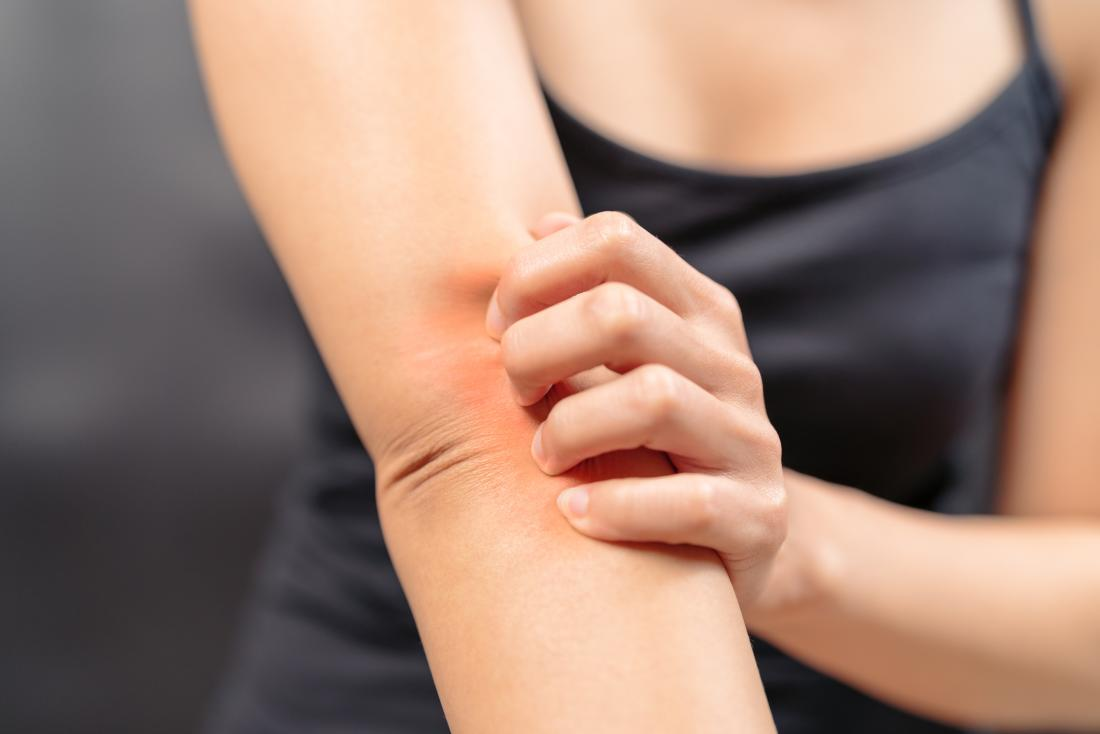 Itchiness is a potential side effect of Cephalexin.