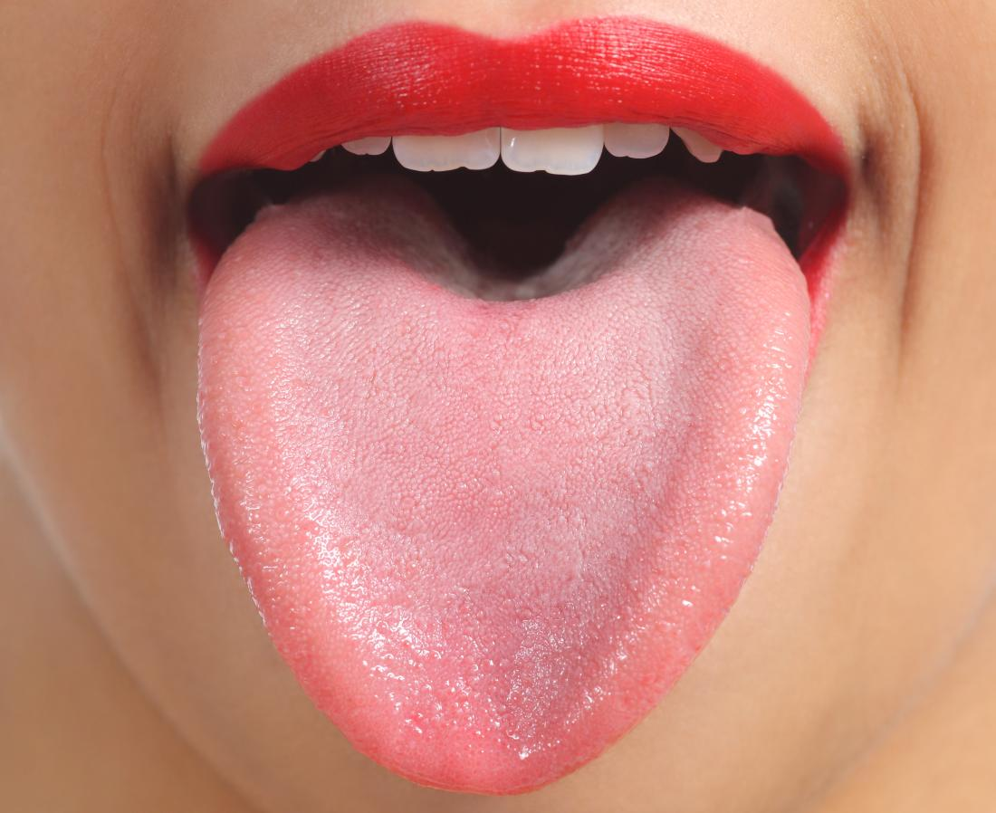 Close up of spots on tongue