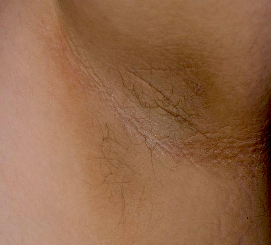 Dark underarms which is also known as Acanthosis nigricans <br>Image credit: Madhero88, 2010</br>