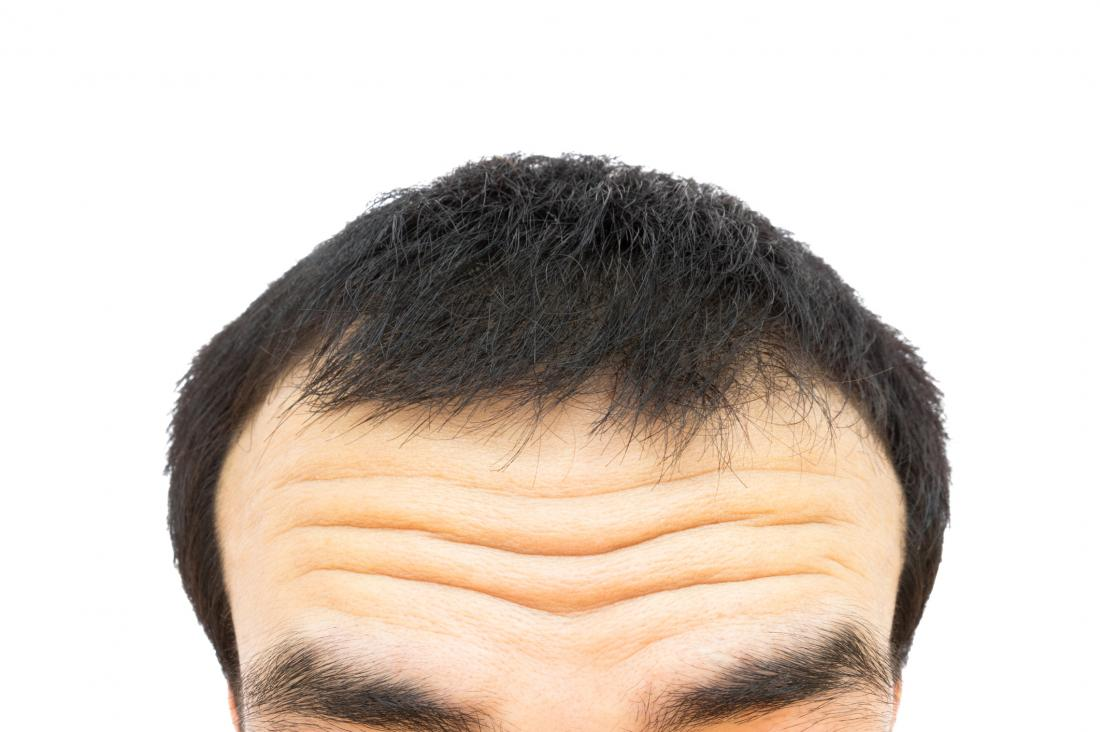 close up of wrinkles on man's forehead