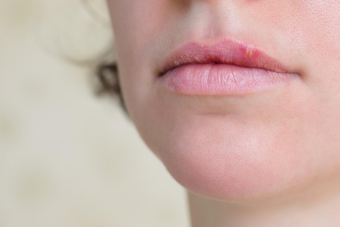 bump on lip causes