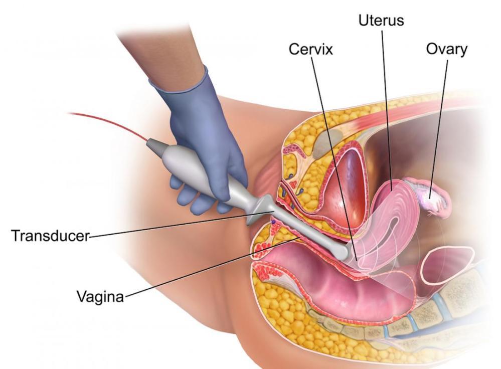 medium resolution of diagram of transvaginal ultrasound br image credit bruceblaus
