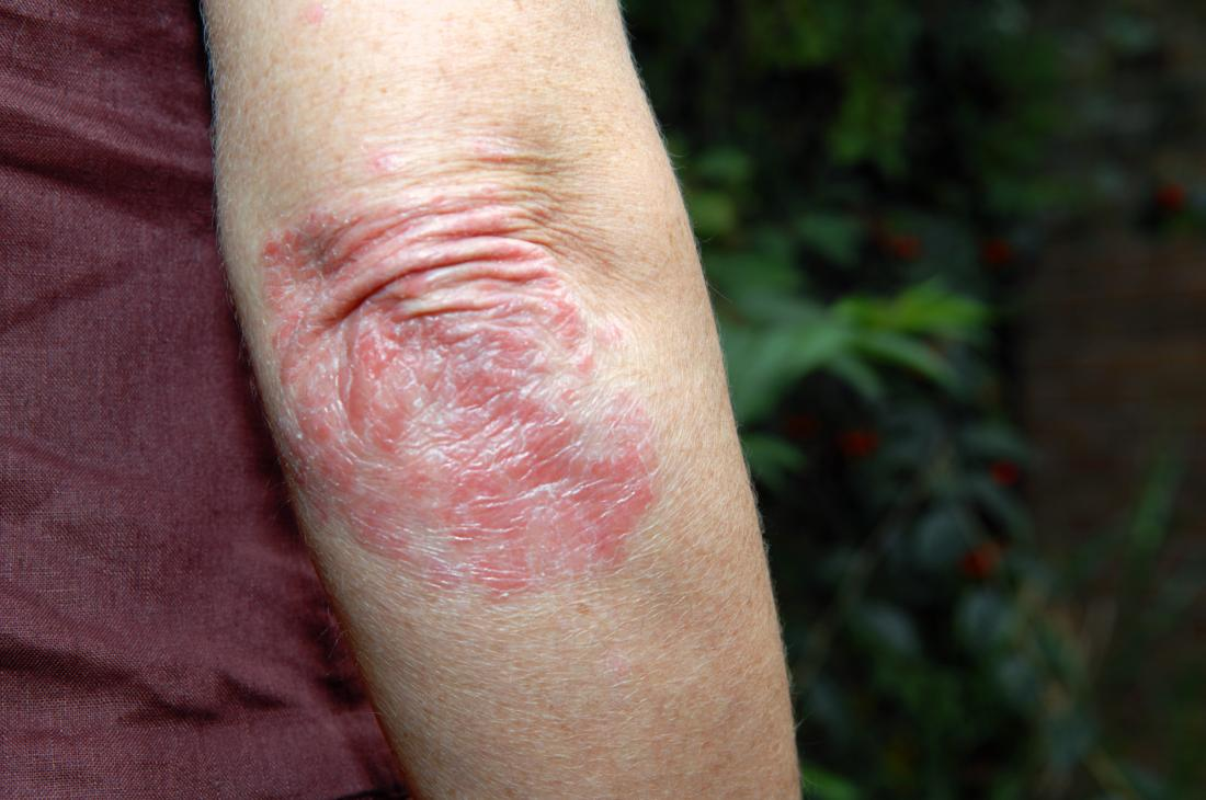 Psoriasis on persons elbow outdoors