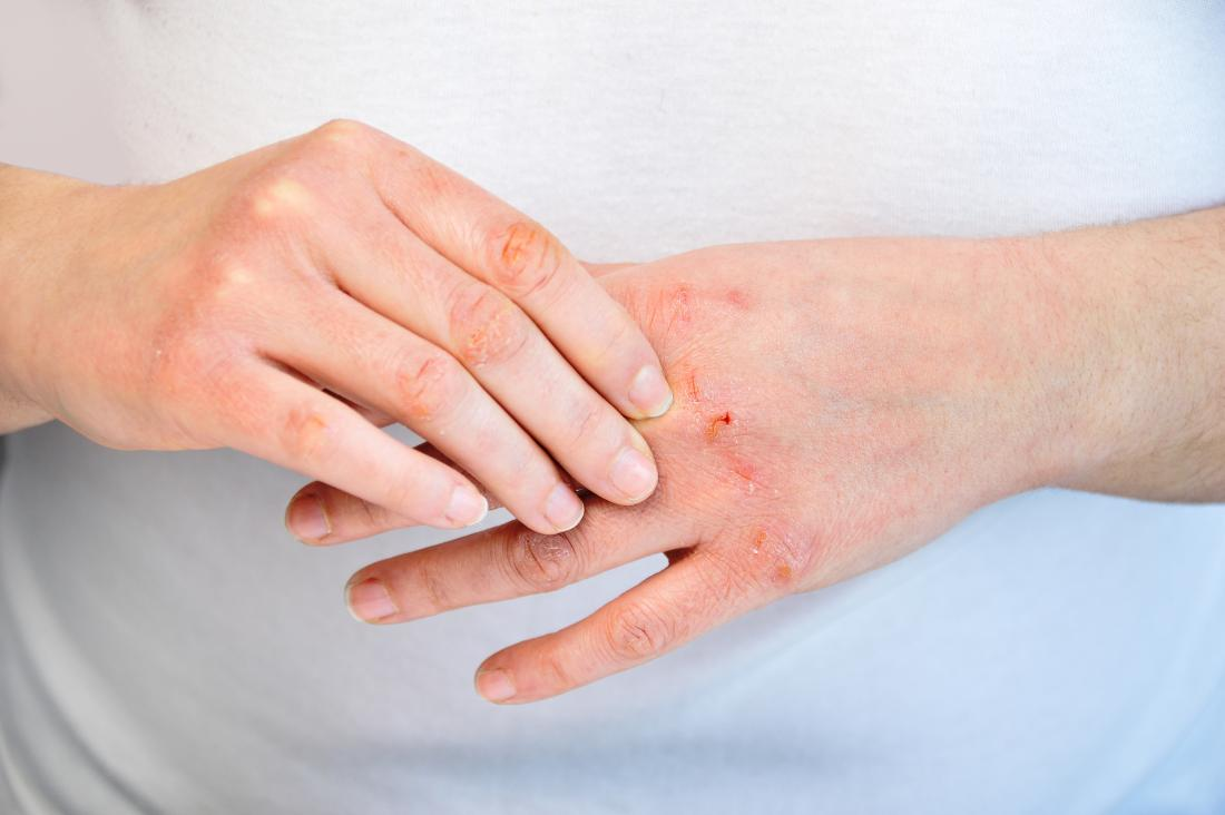 Injured skin on hands as a trigger for psoriasis