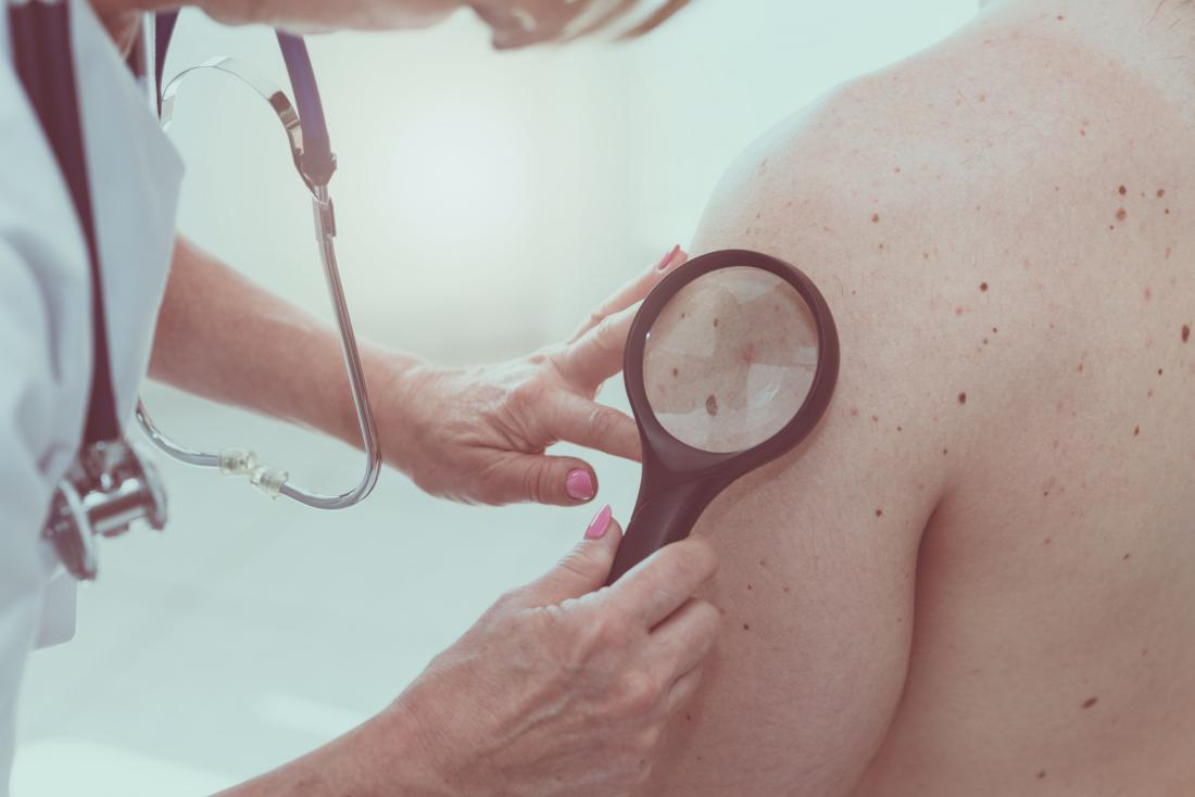Melanoma skin cancer check