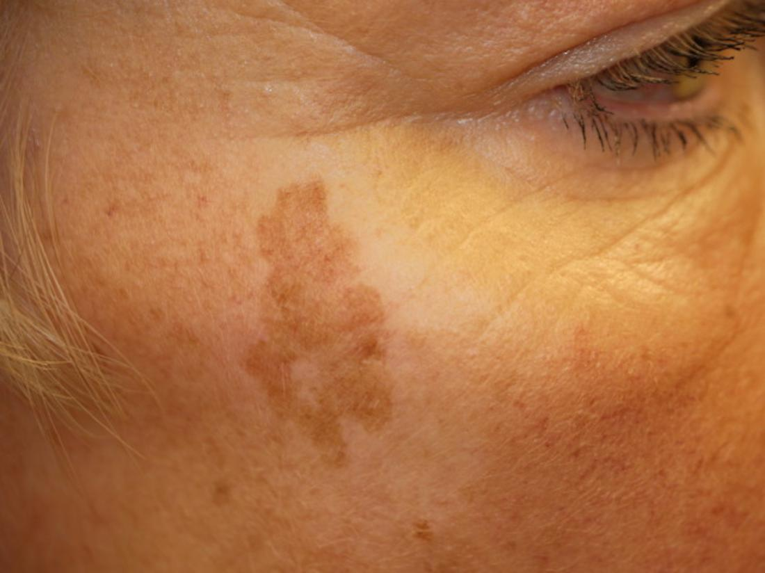 Age spot or liver spot on the face