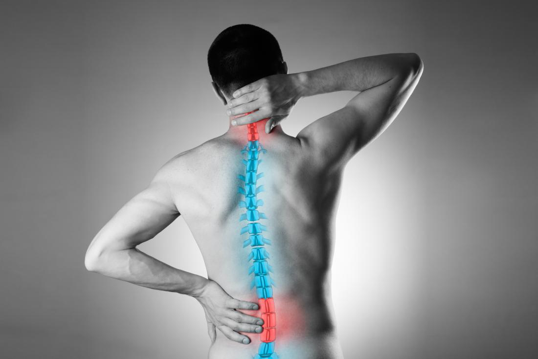 Simple home remedies for back pain