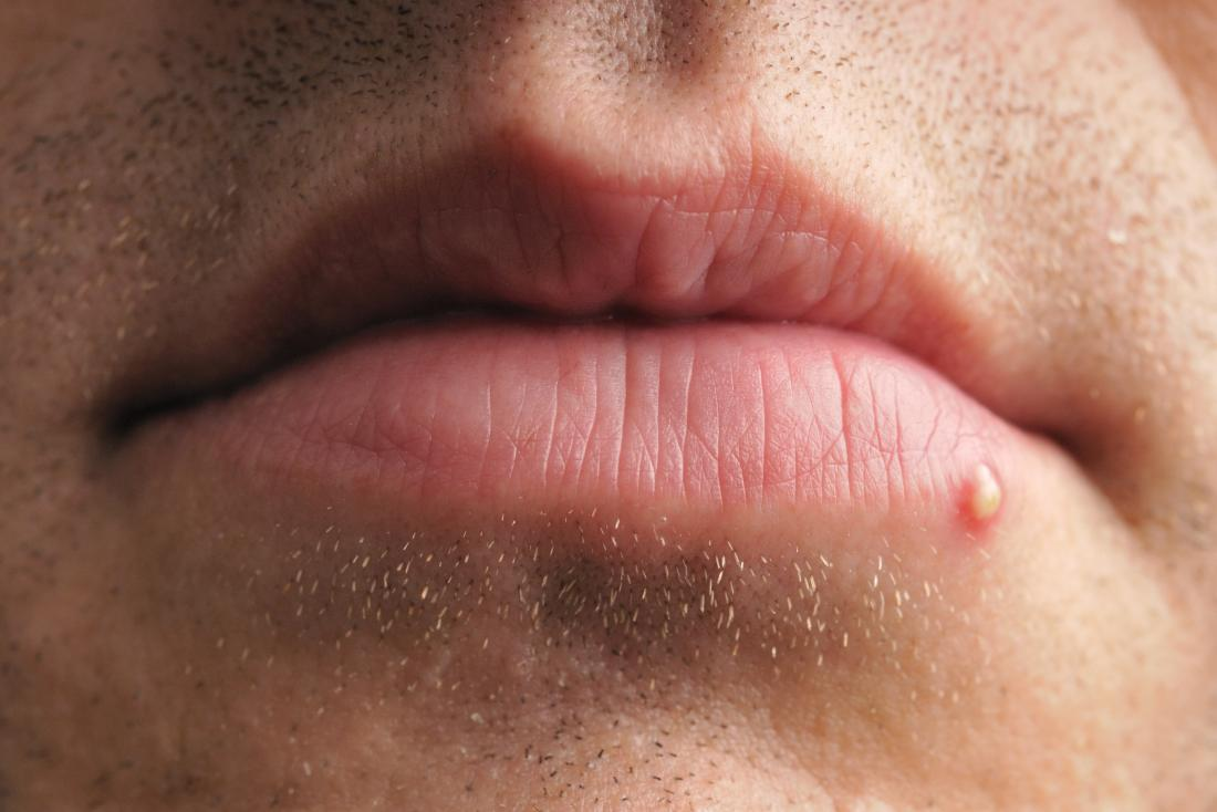 Pimple, spot or zit on lip of mouth