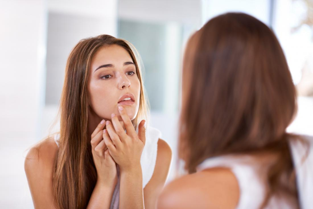 Woman touching lip because of pimple of cold sore, looking in mirror