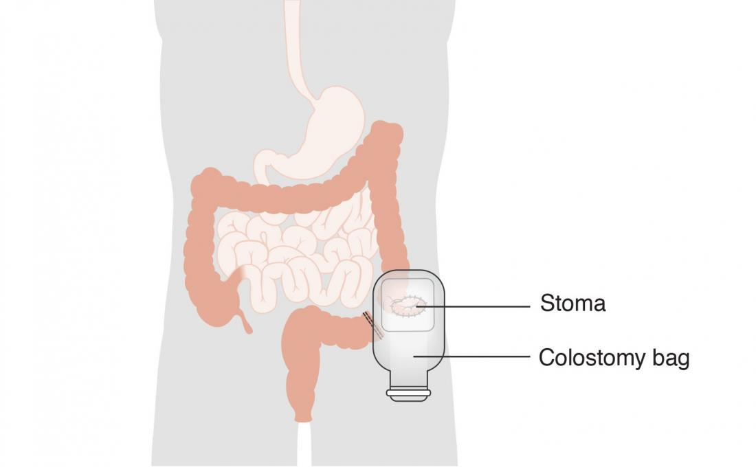 Surgery diagram for stoma and colostomy bag.
