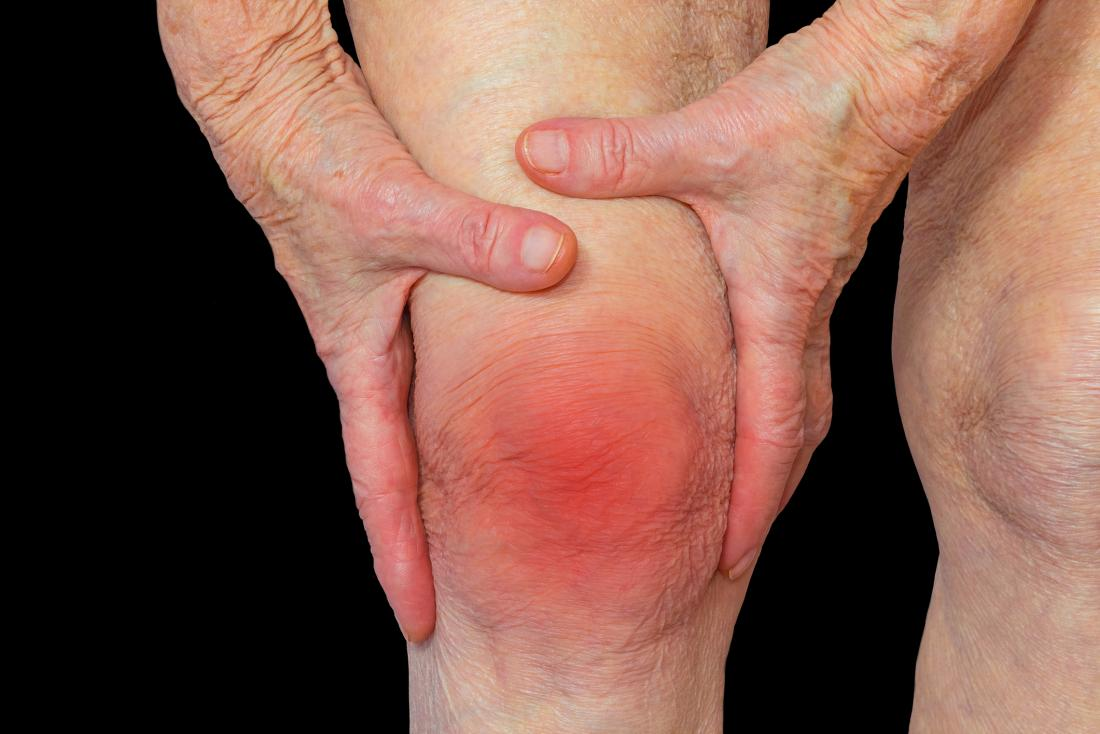 Rheumatoid arthritis (RA): Symptoms, causes, and complications
