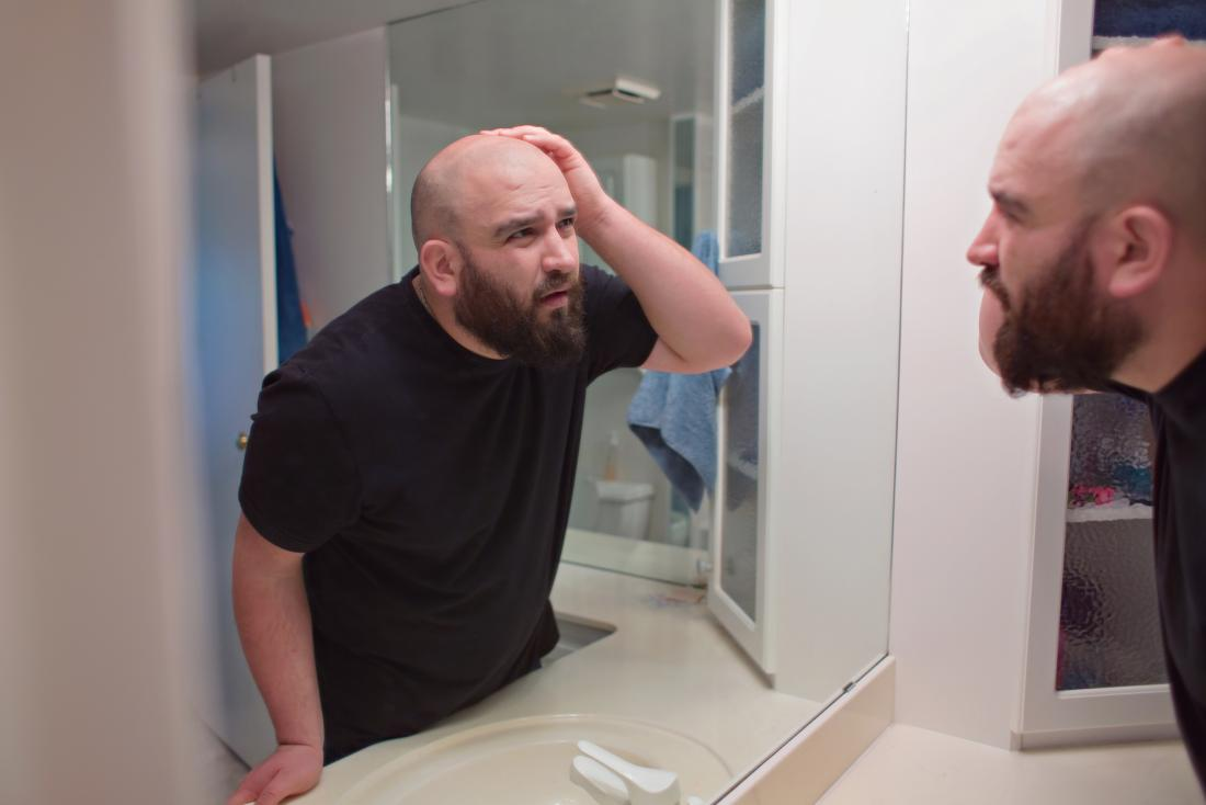 "man examines hair loss<!--mce:protected %0A-->"" data-wp-editing=""1″><br><em>Metformin may play an indirect role in hair loss.</em></div> <p>On rare occasions, people have reported a link between metformin and thinning hair or hair loss. However, it is unclear whether metformin is directly responsible for this issue or if other factors play a role.</p> <p>For example, a <a href="