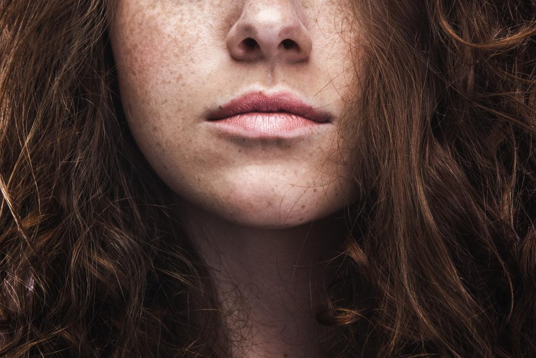 Freckles on a woman's face