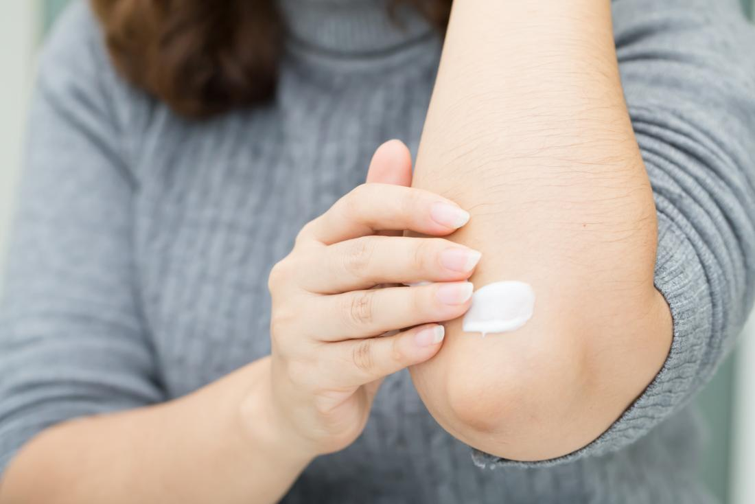 Moisturizers can help prevent and treat eczema flares.