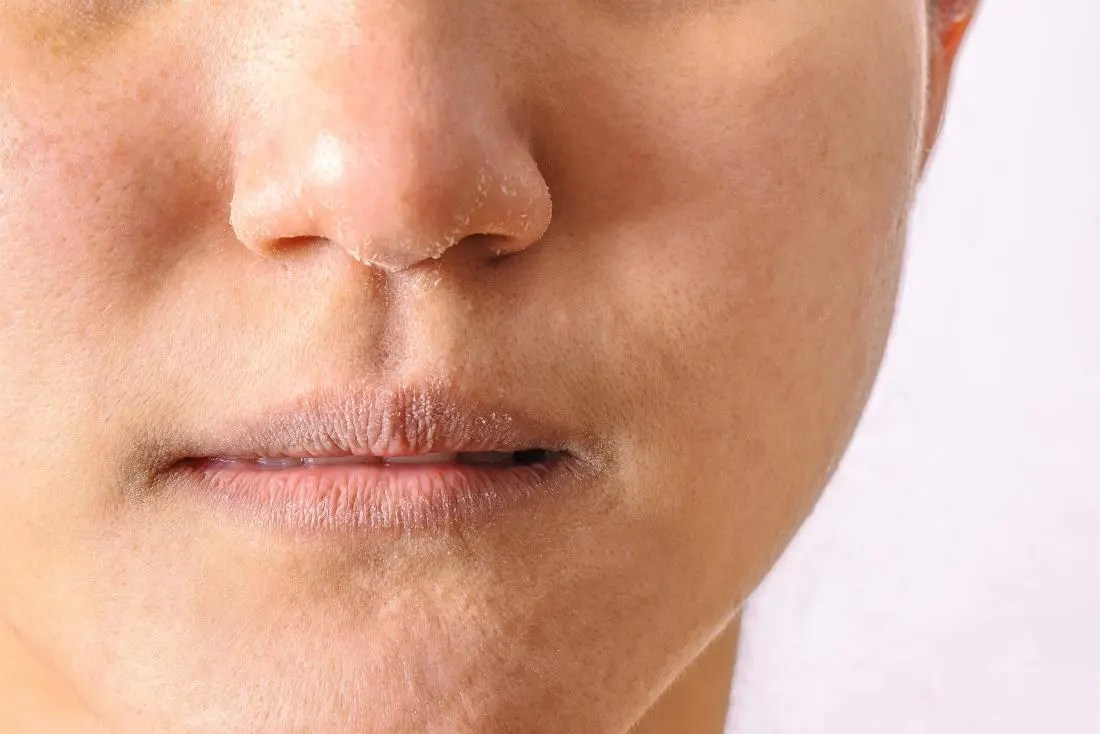 Eczema or dermatitis on lips, mouth, and nose