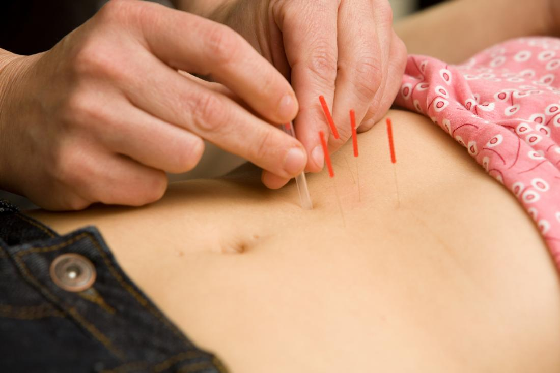 acupuncture for fertility effectiveness