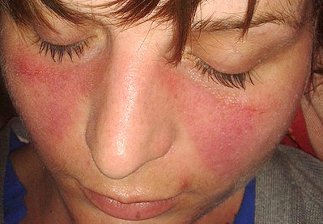 A malar rash is a symptom of lupus. Image credit: Doktorinternet, 2013.
