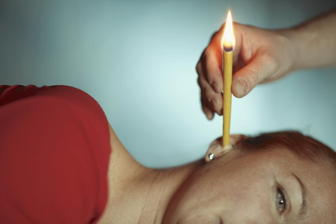 Ear candle being used on woman.