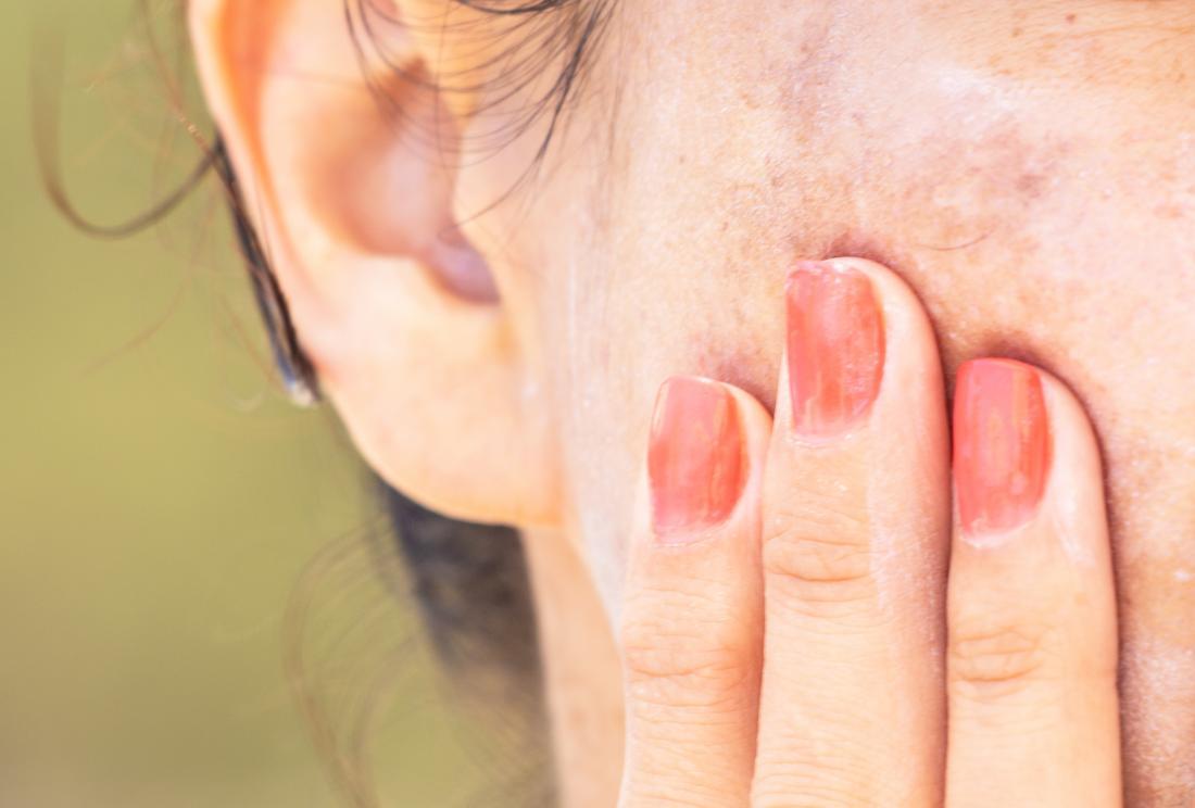 Melazma Nedir Nedenleri Belirtileri Tedavisi, Kloazma nedir, Melazma lekelerinden kurtulan var mı, Melazma tedavisinde kullanılan ilaçlar, Melazma bitkisel tedavi, Melasma leke tedavisi, Cilt lekelerinin tedavisi, Melasma nedir sebepleri nelerdir, Hiperpigmentasyon ne demek, Melazma nedenleri, Hidrokinon