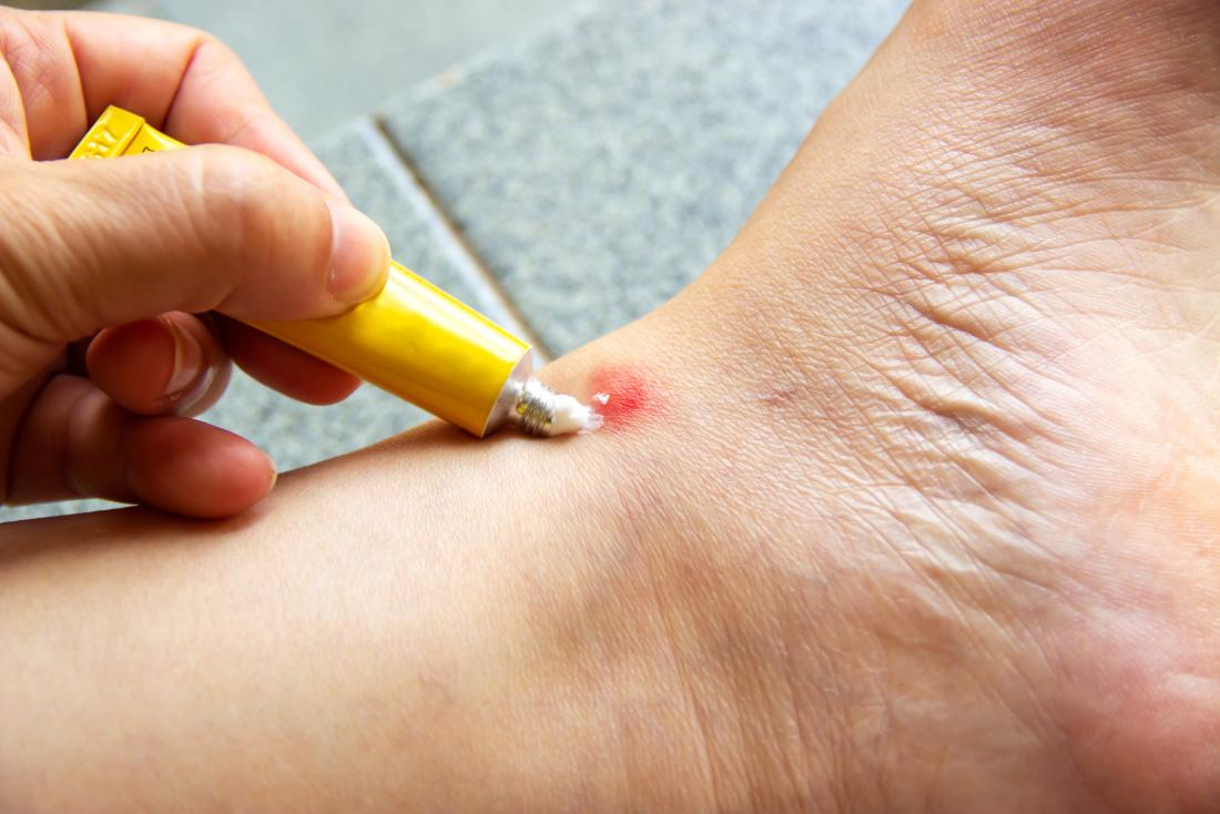 home remedies for mosquito