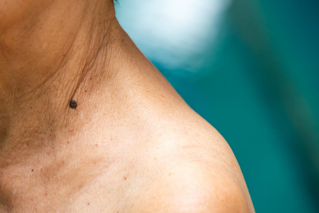 dark mole that potentially looks like melanoma on woman's neck