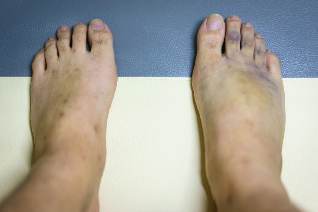Purple bruised feet with swollen areas