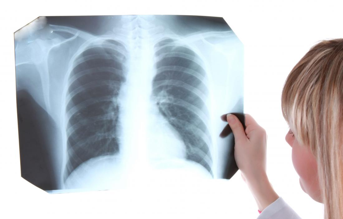 Doctor holding up chest X-Ray