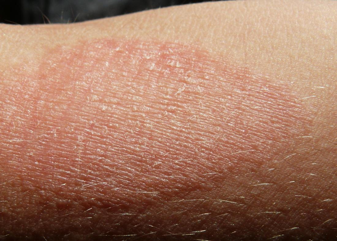 Atopic dermatitis. Image credit: G.steph.rocket, 2015.