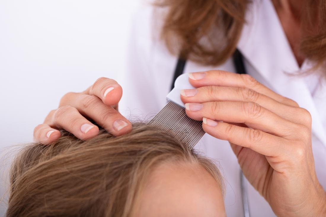 Doctor inspecting a girls scalp to determine if it's lice or dandruff