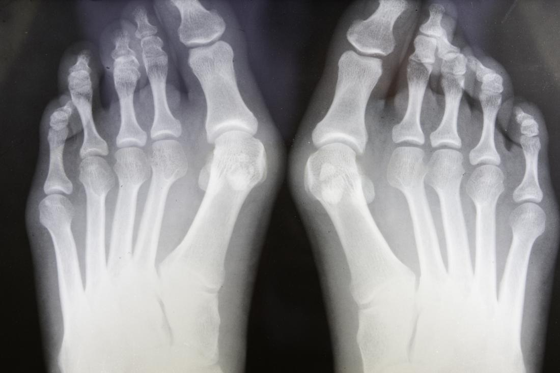 Foot Bones Anatomy Conditions And More