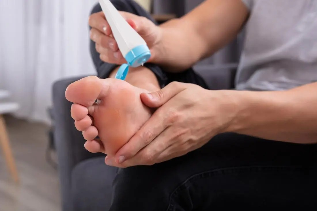 Person putting lotion on their foot to relieve itchy dry skin