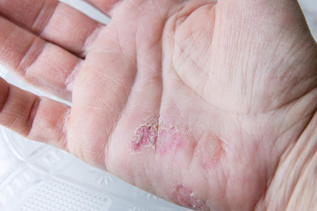 sore and peeling skin on a hand caused by winter rash